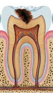 diente01