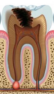 diente02