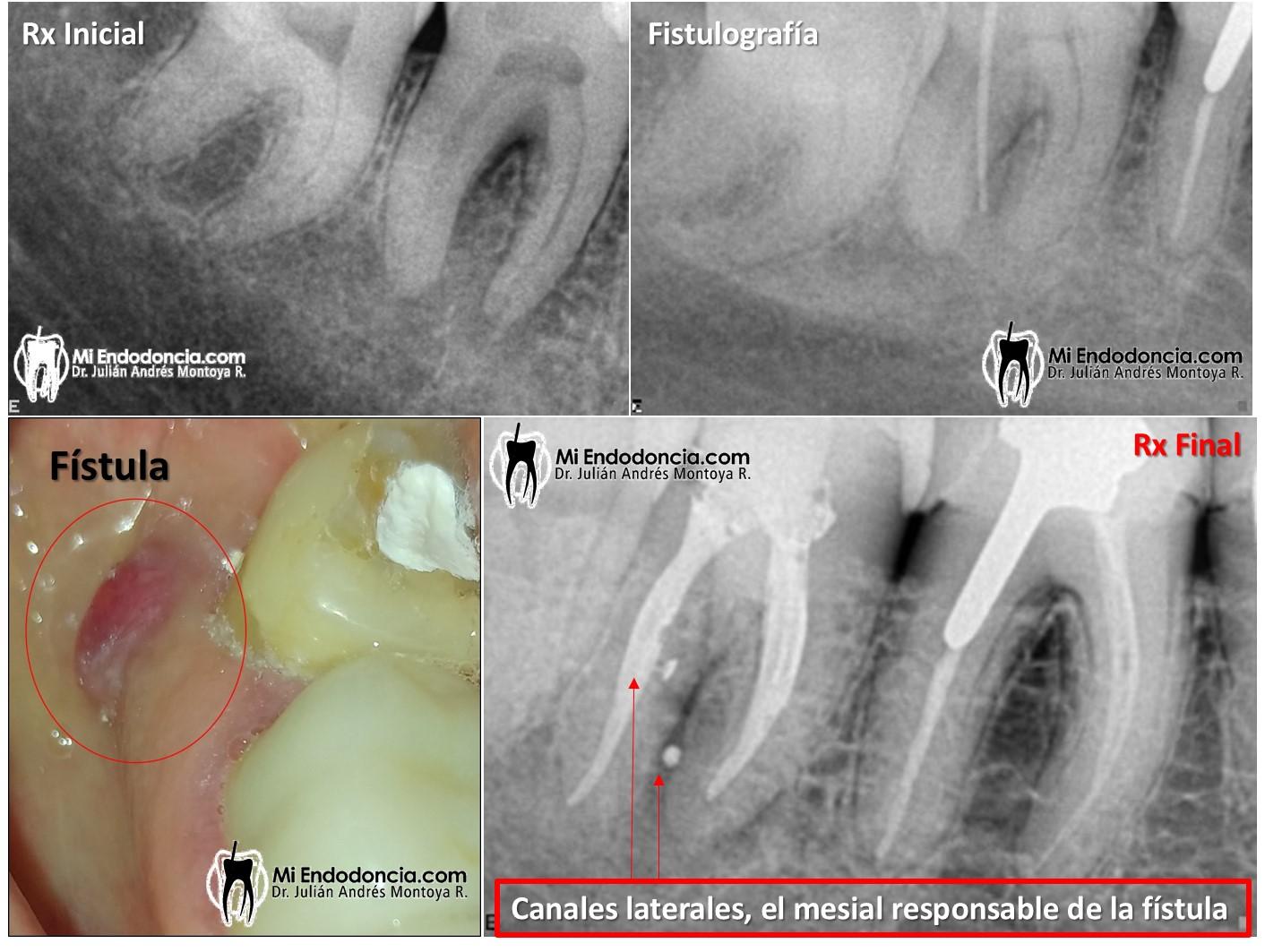 Mi Endodoncia   LESIÓN PERIRRADICULAR Y NO PERIAPICAL