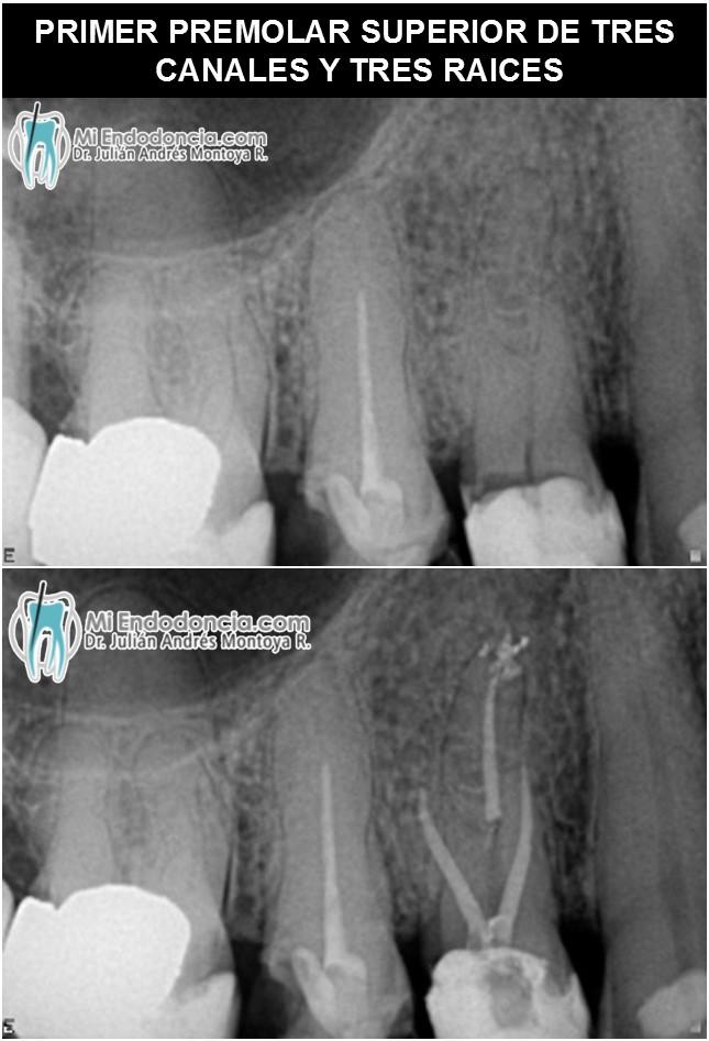 Mi Endodoncia | Dr. Julián Andrés Montoya Rivera