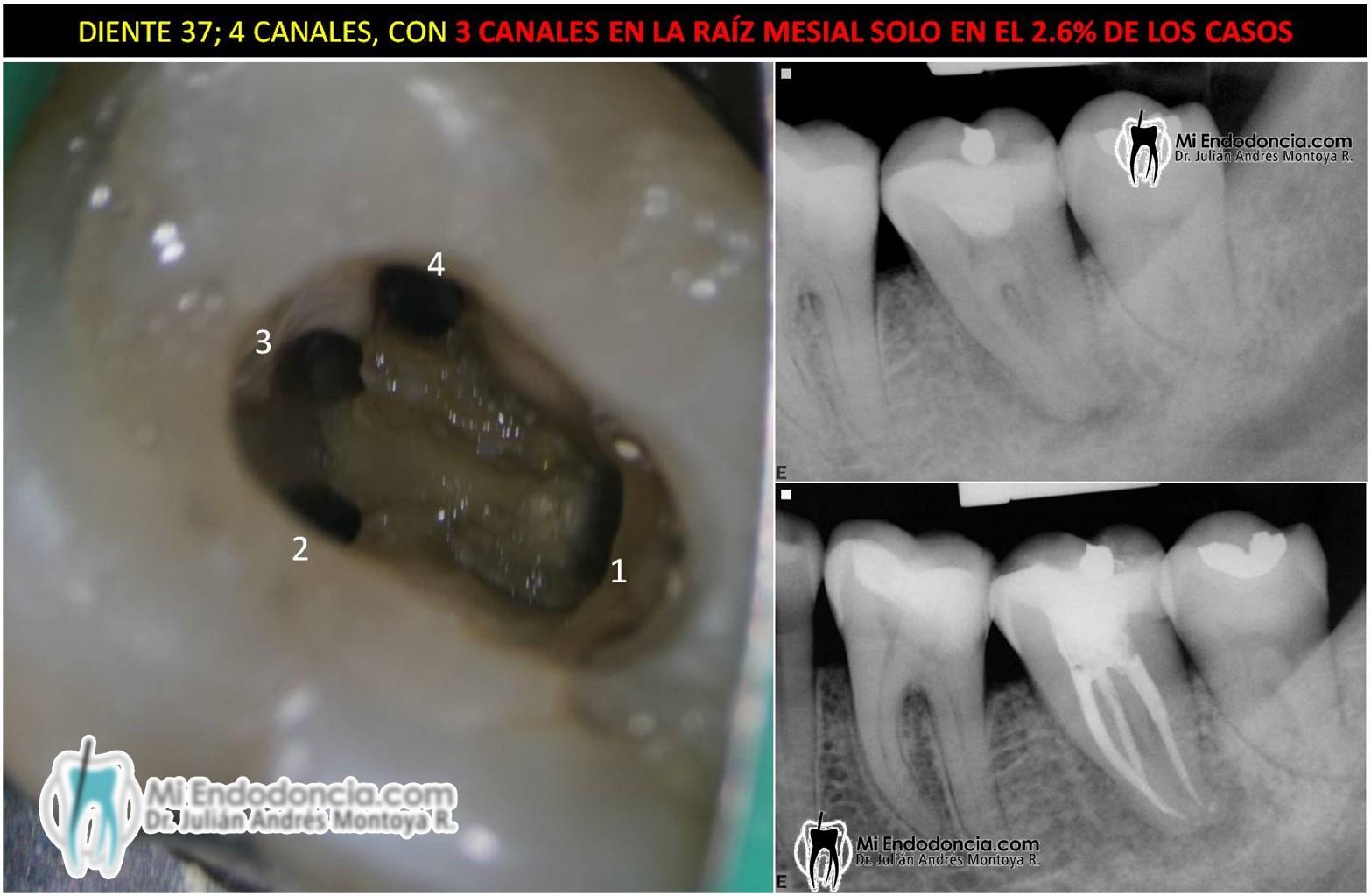 Mi Endodoncia | Segundo molar inferior con cuatro canales, pero tres ...